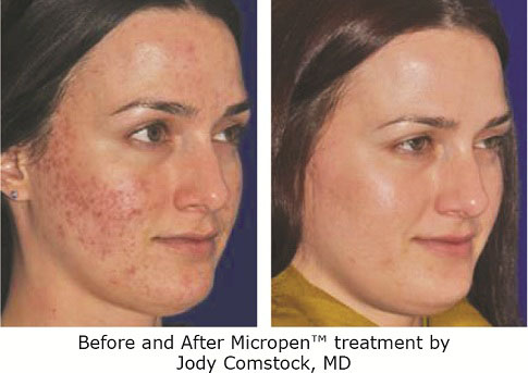 Acne Treatment Beverly Hills | PRP For Acne Scar Removal Los