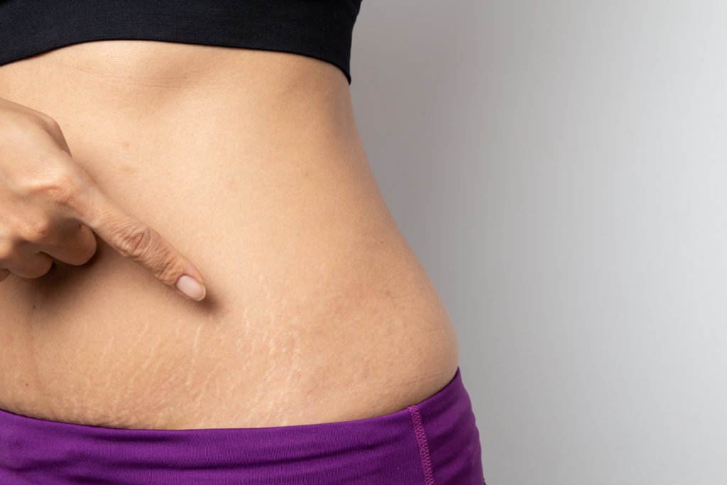 Woman pointing to stretch marks on body